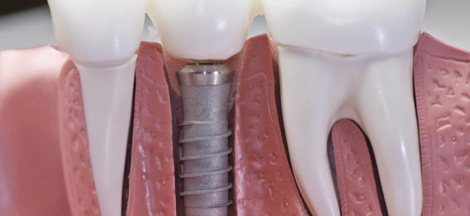 Implants & Bridges