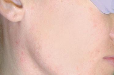 acnena.jpg