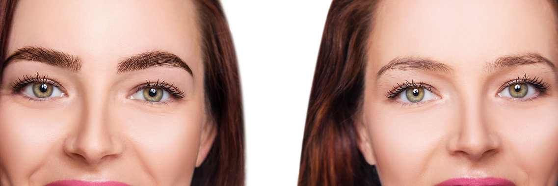 Eyebrow%20Lamination%20dublin%20near%20m