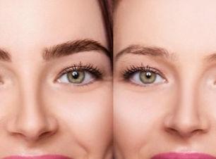 brows-lamination-botox-tick-eyebrows-sha