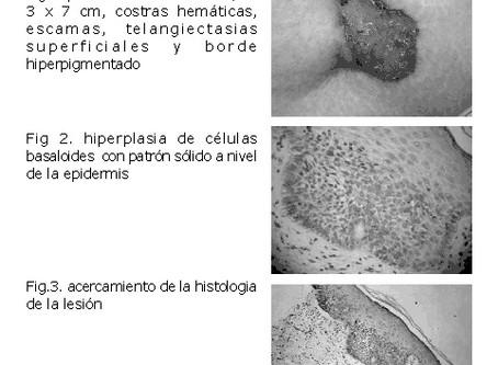 Carcinoma Basocelular Superficial: reporte de un caso