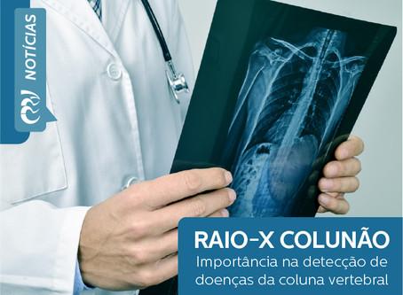 RAIO-X COLUNÃO e sua importância para a detecção de doenças na coluna vertebral