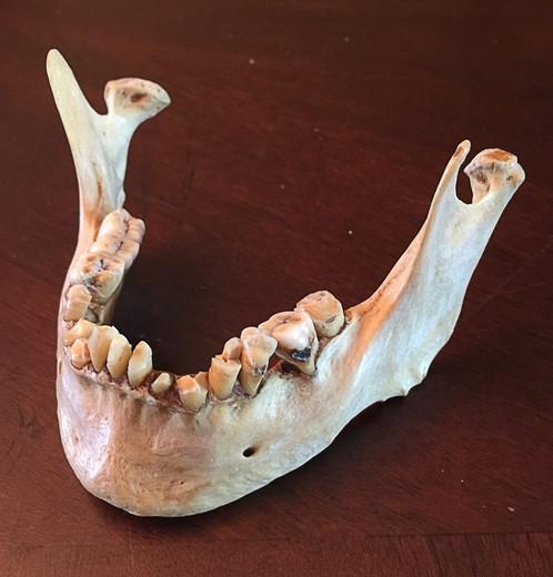 Human Mandible Lower Jawbone Oddities Curiosities Murderabilia
