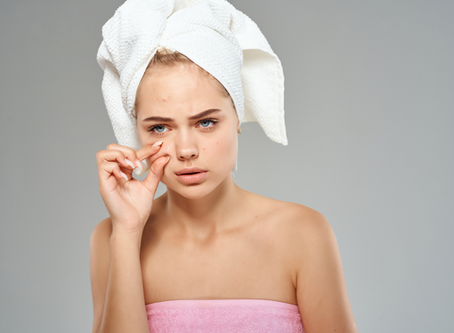 Check out the reason and easily fix adult acne
