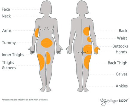 LipofirmPro-treatment-areas.png