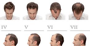 Limitsiz saç əkimi Xətai Estetik Klinikası ?
