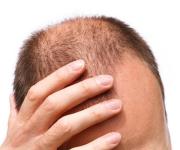 Saç ekiminden sonra ekilen saçların tökülmə ehtimalı varmı ?