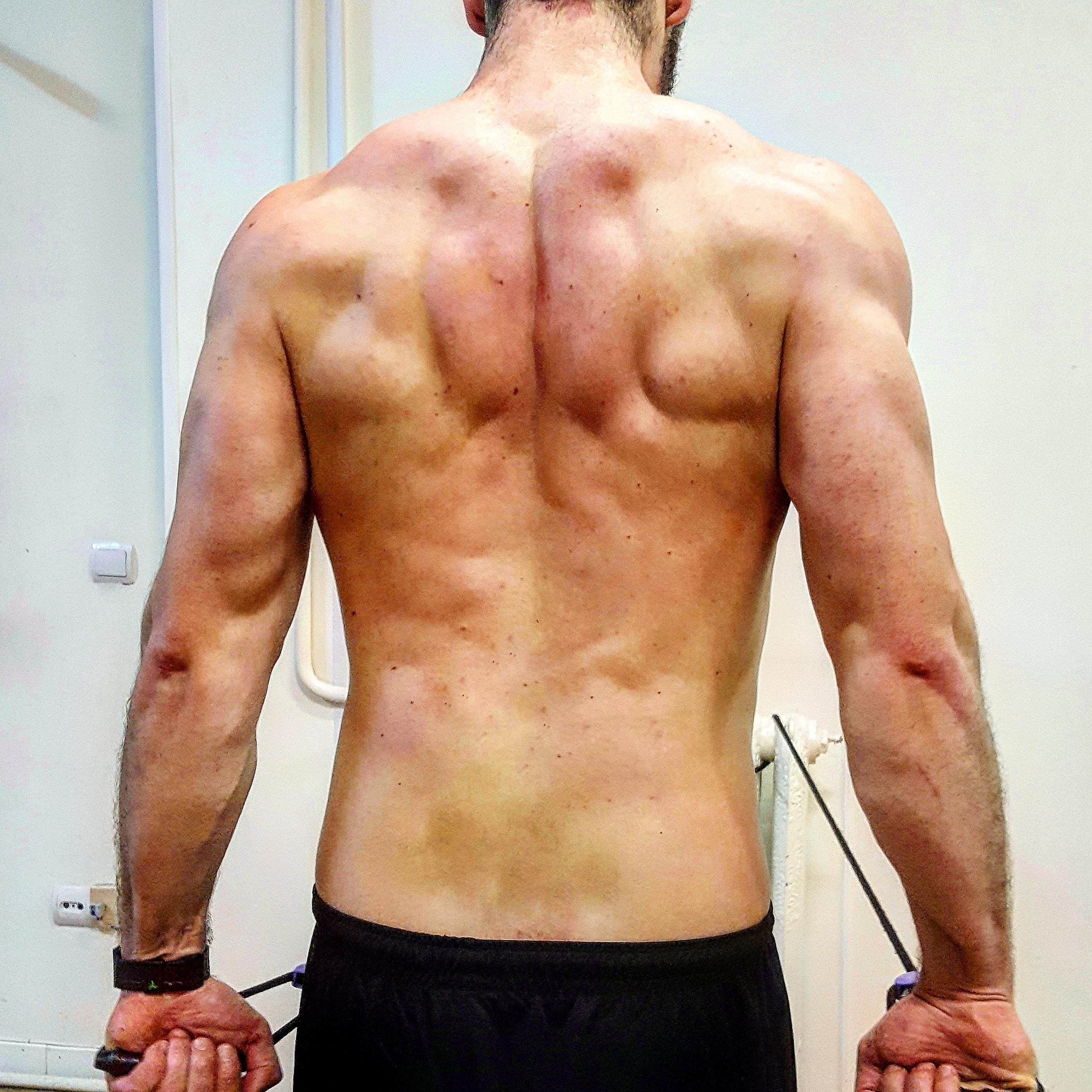 Músculo Trapecio   Fisioterapia en Madrid: Fisiosesto