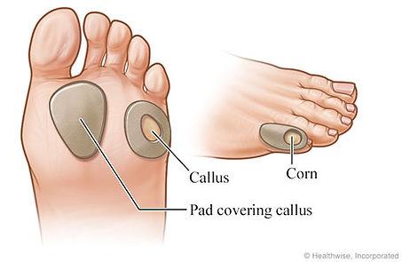 calluses and corns.jpg