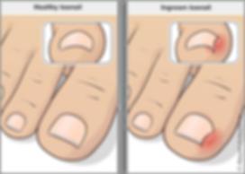 ingrown toenail.png