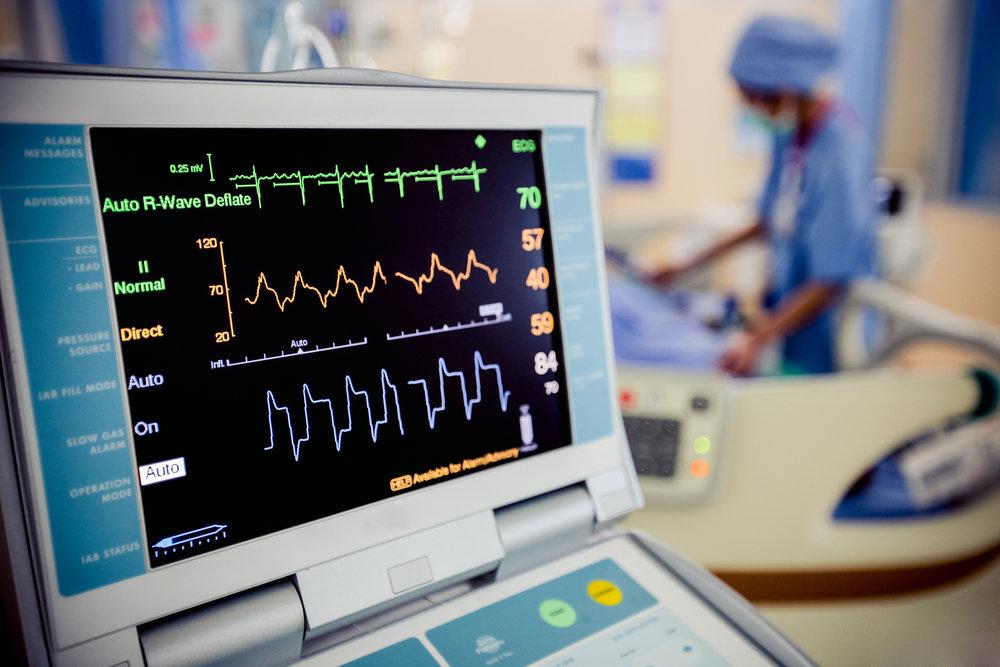 EKG- Technology