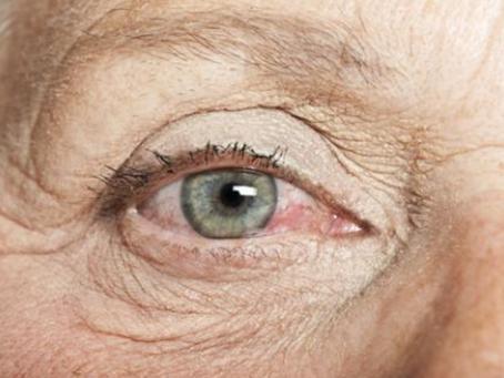 Salud: Ojo seco en personas mayores.
