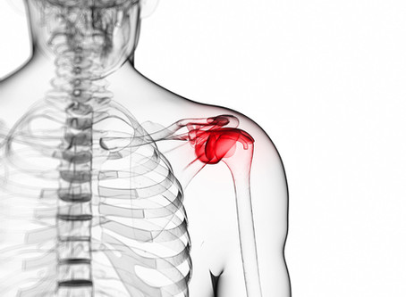 Rotator Cuff Tears & How We Fix Them