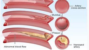 冠心病 - Coronary Heart Disease