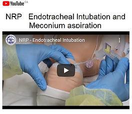 NRP 2 ETI and Meconium Aspriation.jpg