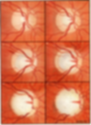 glaucoma progression 1.png