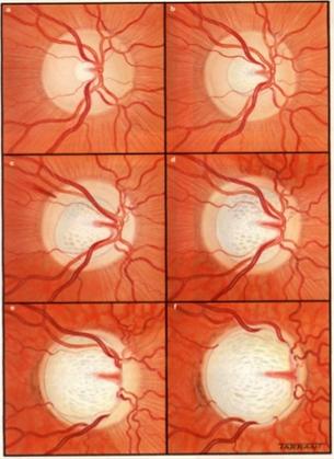 glaucoma progression 1.png