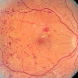 Eye-with-Diabetic-Retinopathy.jpg