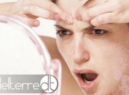 Acne na gravidez: tratar da pele com segurança para a mãe e para o bebé