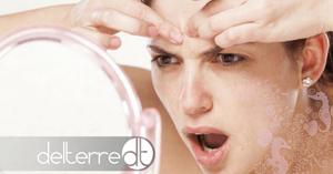 acne-na-gravidez-tratamento-natural