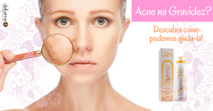 Acne na gravidez - spray dermatológico natural