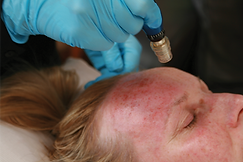 Medical Skin Needling