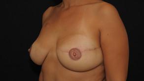 La reconstruction mammaire immédiate : la règle, pas l'exception