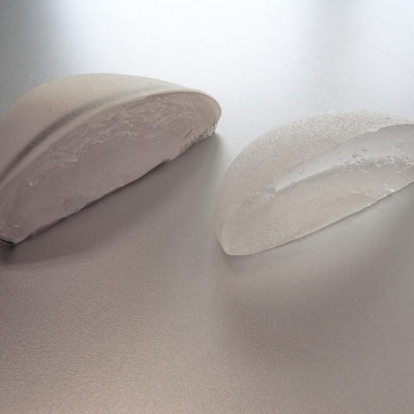 Implant mammaire en coupe