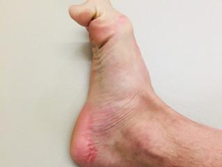 足の裏が痛い