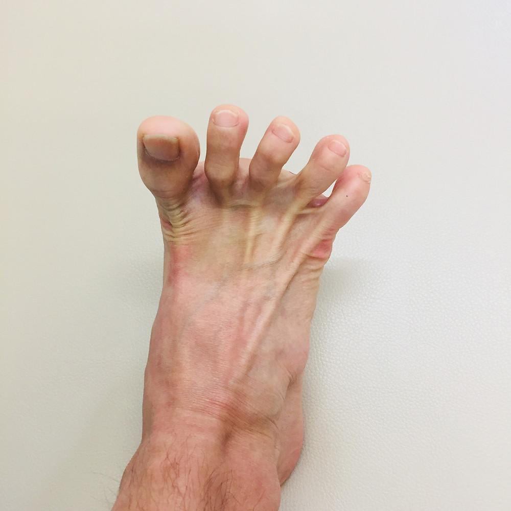 足の指・足の裏もこのくらいは動きます