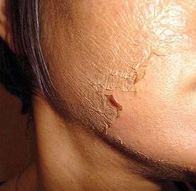 medical skin peel