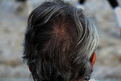 Gray hair coverage