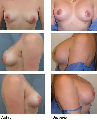 Mamoplastia Colombia Dr Pavajeau Antes y Despues