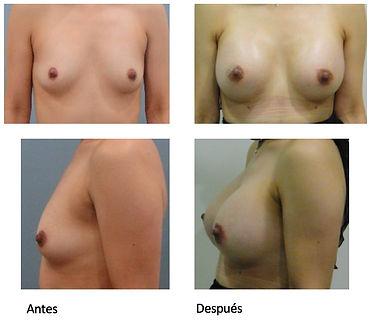 Protesis Mamarias Colombia Dr Luis Pavajeau