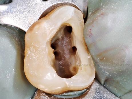 Endodoncia de 5 conductos