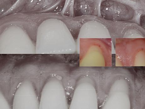 Cirugía oral laser.