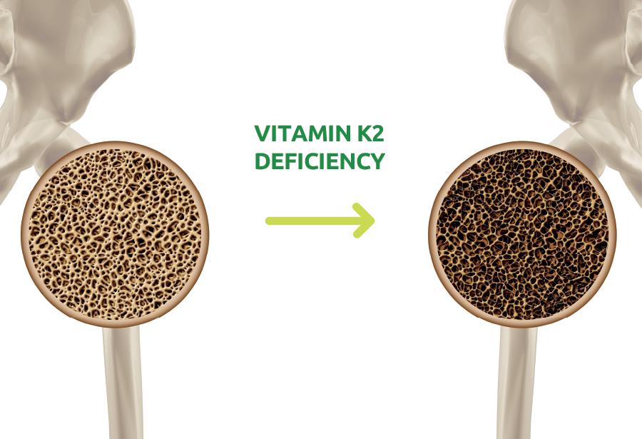 MK7 giúp  hấp thu tối đa canxi tới tận xương giúp cải thiện mật độ độ xương