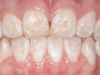 Doença celíaca e sua relação com a saúde bucal