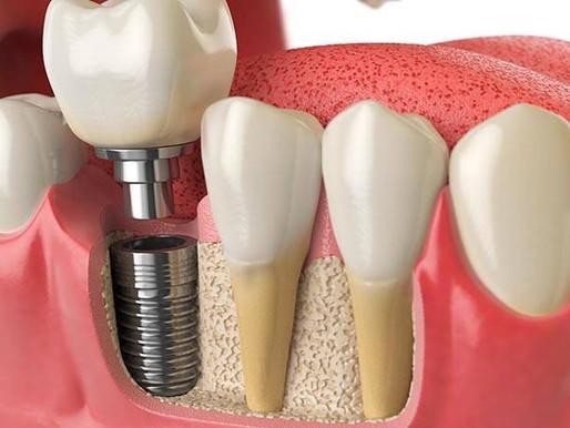 ¿Soy candidato a un implante dental?