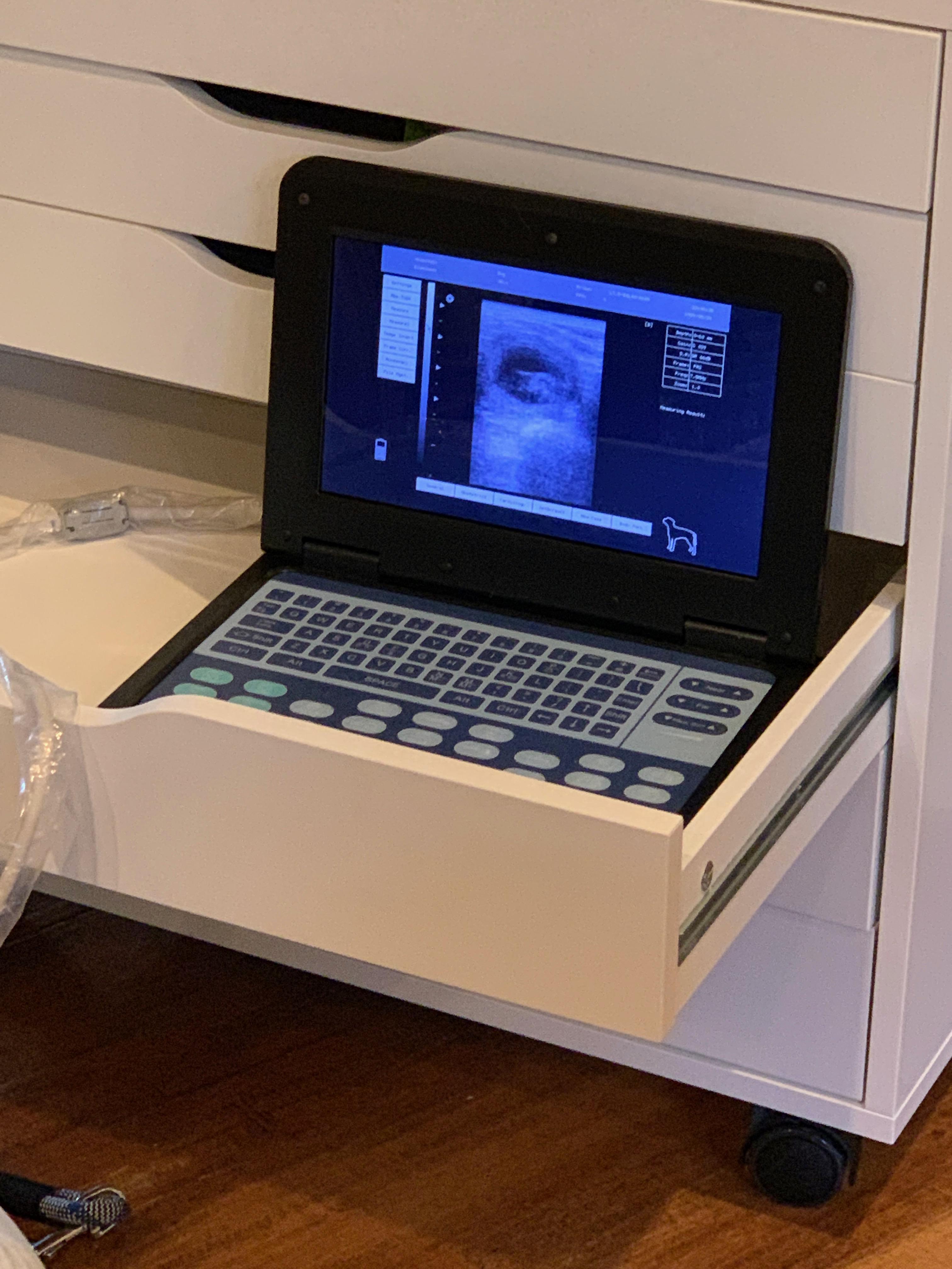 Ultrasound Photo