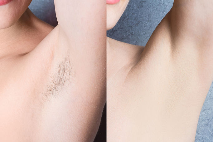 women's underarm hair removal before aft