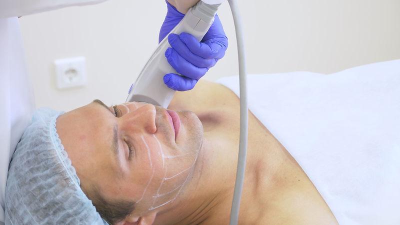 Non-surgical face lifting. SMAS lifting