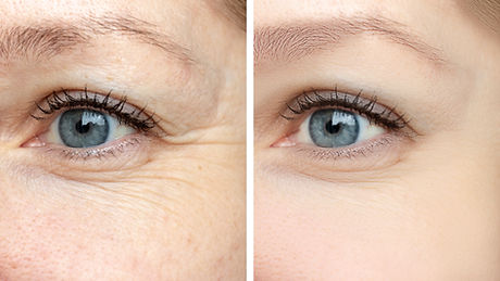 Woman face, eye wrinkles before and afte