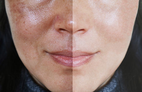 Face with open pores and melasma before
