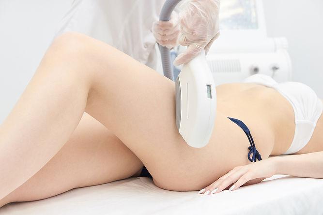 Elos Laser Legs Hair Removal. Epilation