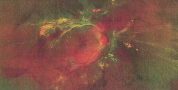 retinopathie.png