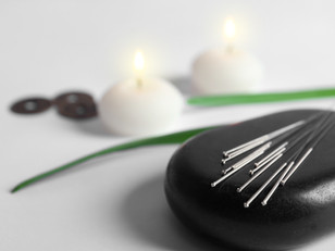 What is Acupuncture and How can it Help You?