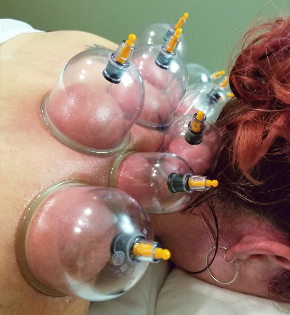 Pure Health Patient receiving Neck Cupping