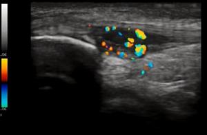 Doppler Ultrasound Patella Tendinosis