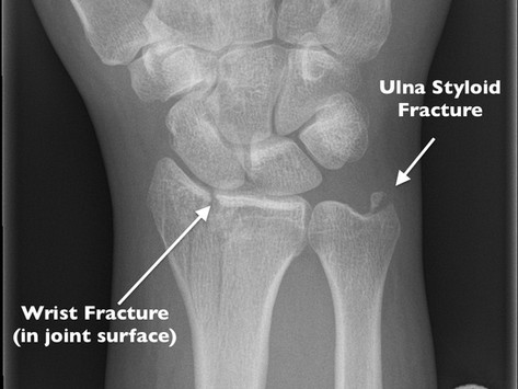 MLB Dodgers - Justin Turner: What Fracture Might He Have and When Will He Return?